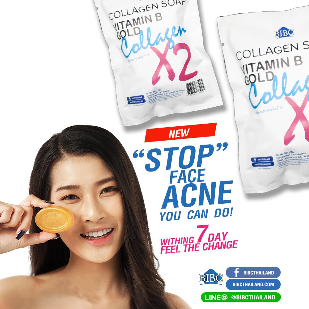 Stop FACE ACNE
